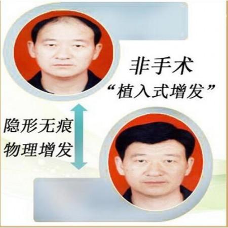 武汉市植发补发的公司哪家质量和服务以及售后好