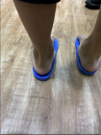 儿童扁平足矫形鞋垫