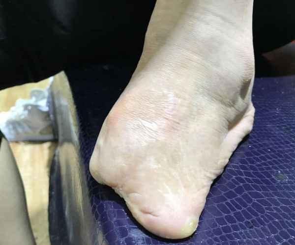 足部肢体缺失鞋垫