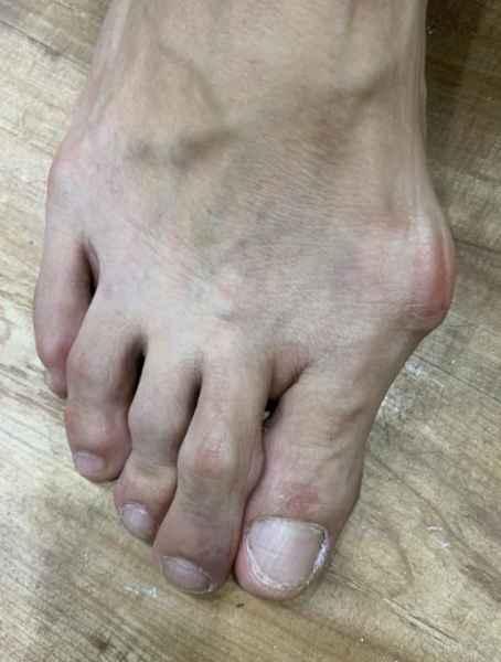拇外翻矫形鞋垫