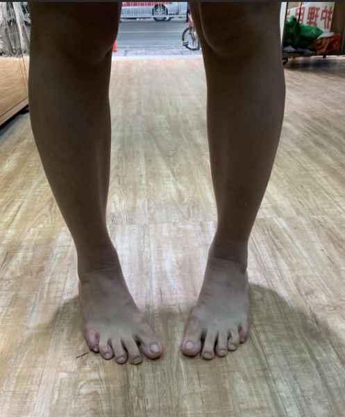 内八字矫形鞋垫