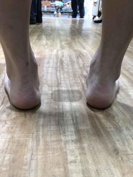 X腿矫形鞋垫